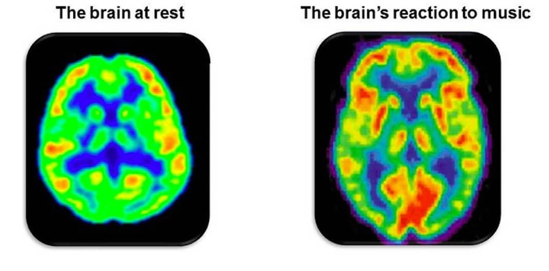 Hersenscan van effect muziek